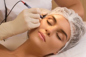 Cosmetic Laser Procedures