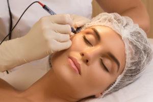 Cosmetic Laser Procedures