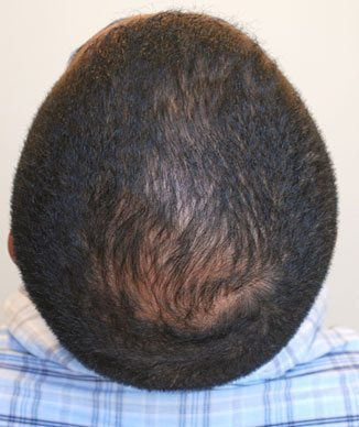 ACell + PRP in Hair Transplant Surgery | Northwest Hair