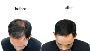 hair loss - hair loss treatments