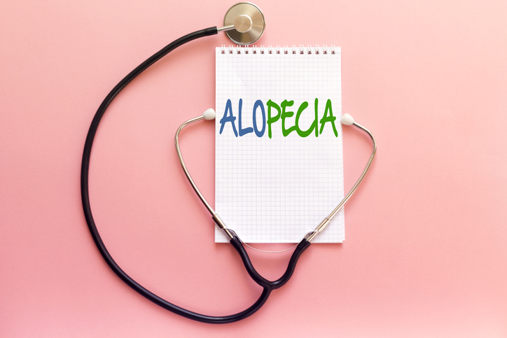 What Is Alopecia in Seattle WA