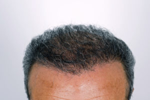 caring for hair transplant