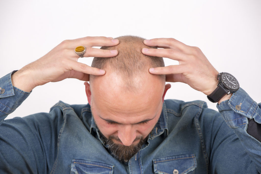 Post-Hair Transplant