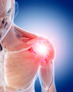 Shoulder Pain and Injuries and How to Avoid Them