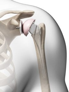 What You Need to Know About Shoulder Replacement Surgery