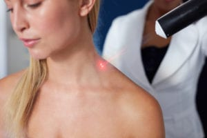 Benefits of Laser Surgery
