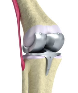 Is an Artificial Joint Right for You?