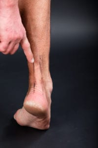 Foot Pain: Have You Injured Your Achilles Tendon?