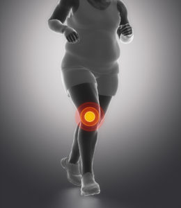 Overweight Knee Pain - Orthopaedic Associates of Central Maryland
