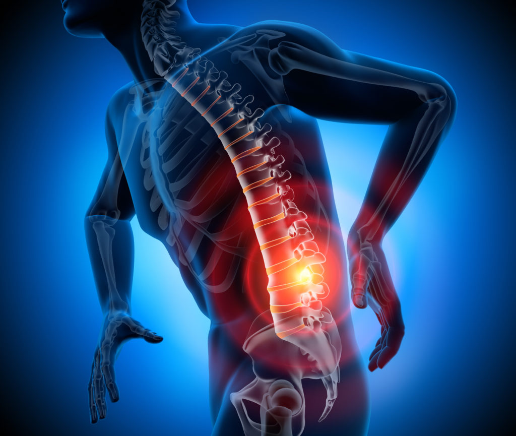 Percutaneous Disc Nucleoplasty - Orthopaedic Associates of Central Maryland - orthopedics