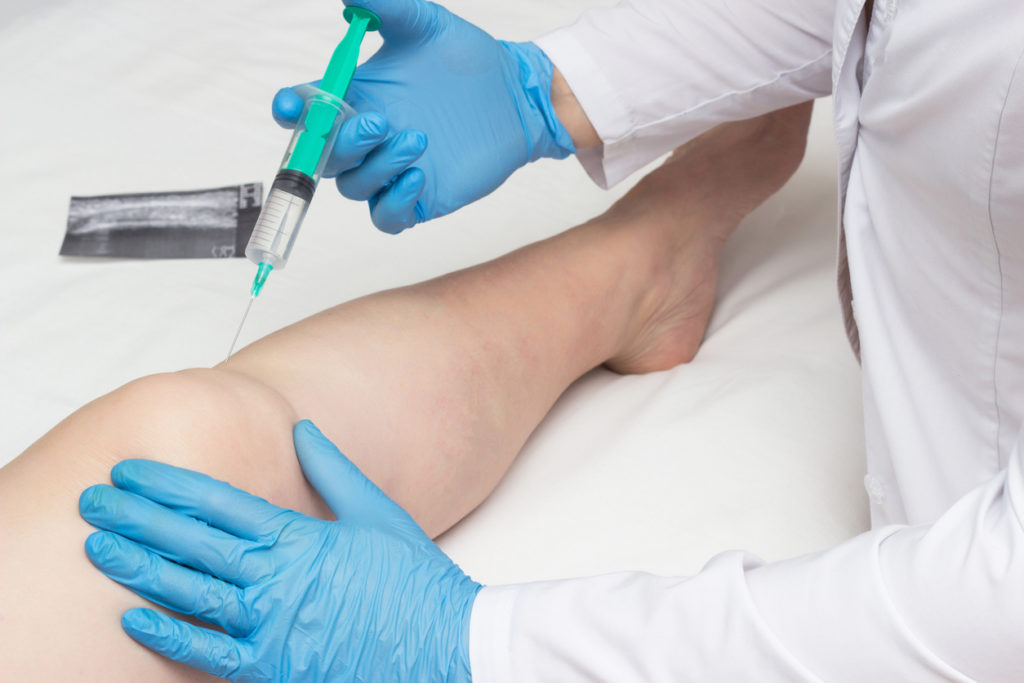 PRP Therapy Work