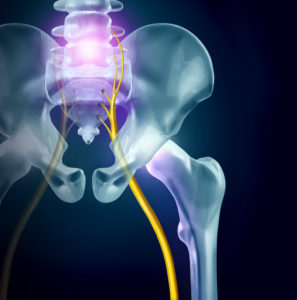 sciatica pain graphic