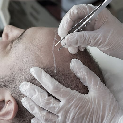 Maxim Scalp Micropigmentation