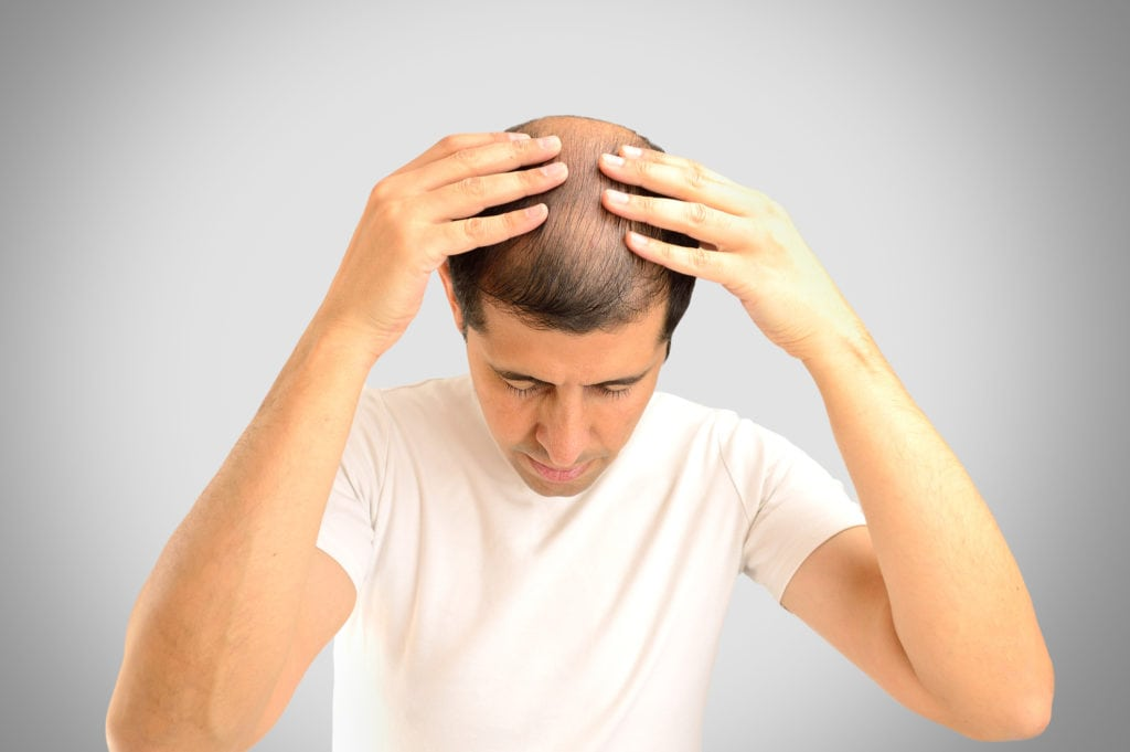 smp hair restoration