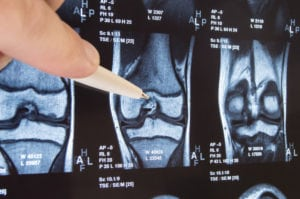 outpatient total joint replacement, outpatient joint replacement,dr. brett gilbert