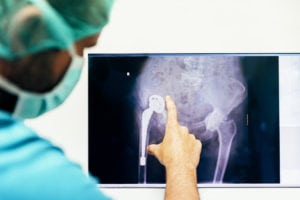 Is Robotic-Assisted Joint Replacement Right for You?