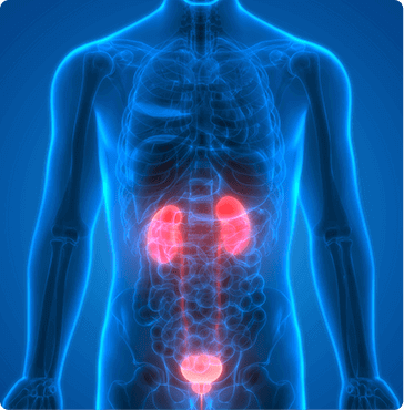 Urologic Cancers - Bladder cancer - Kidney cancer - Prostate Cancer - Urology Associates
