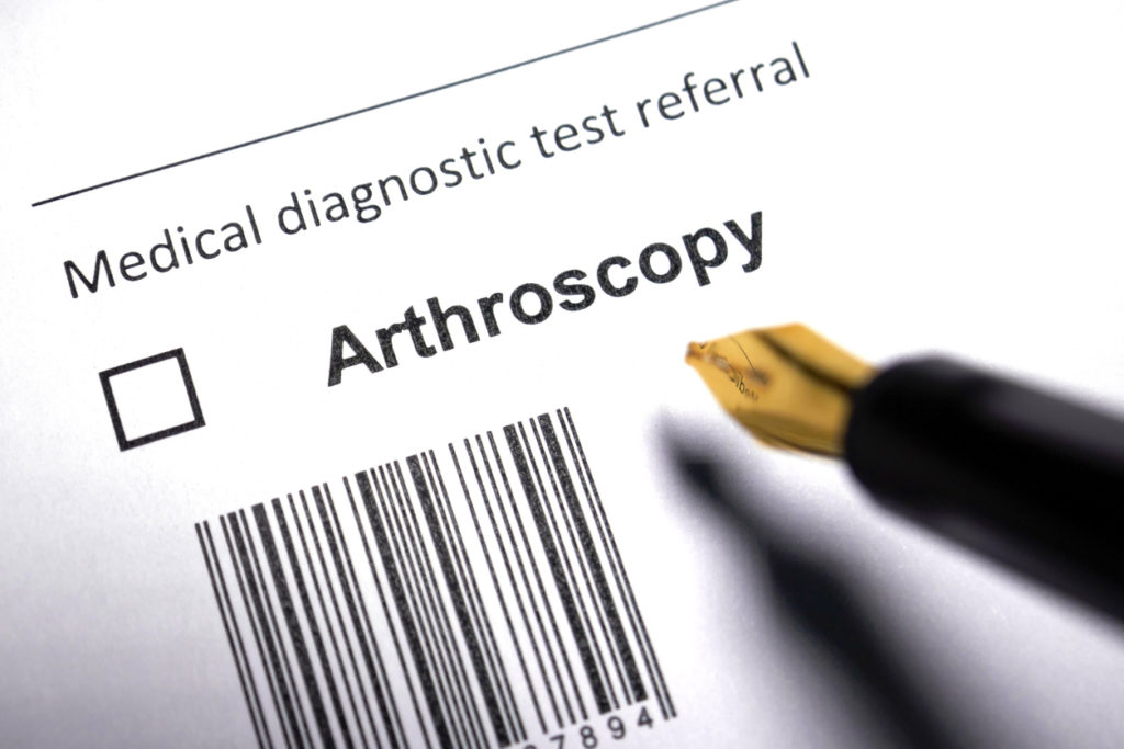 Arthroscopy Benefits