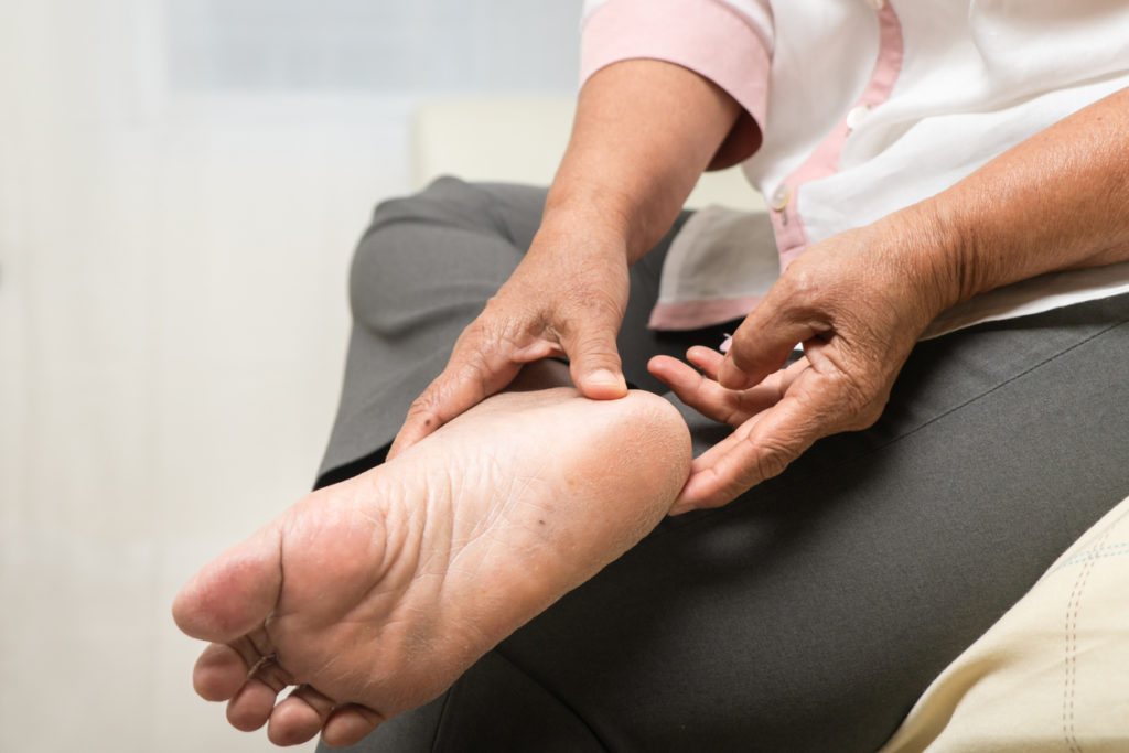 senior woman with foot pain