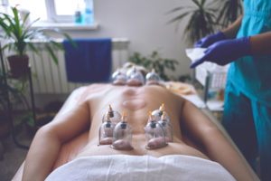 cupping therapy wayne nj