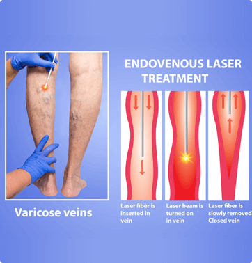 Venous Ablation Services - Premier Vein & Vascular