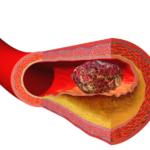 deep vein thrombosis - vein surgery - premier vein and vascular