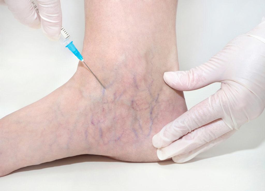 development of spider veins - vein surgery - premier vein and vascular - largo and tampa