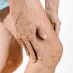 torn meniscus
