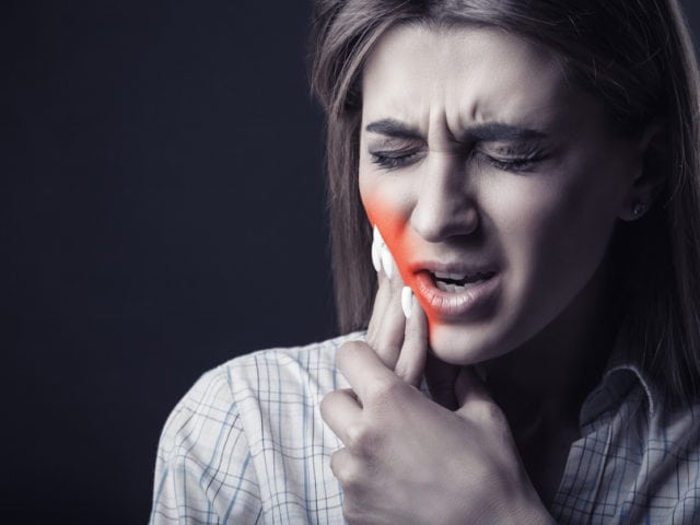Myths About Root Canals