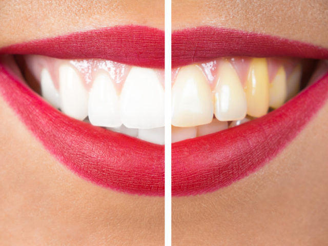 Discolored Teeth: What Does That Mean?