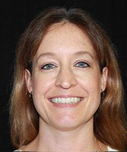 Jessica Kirkham, RDH