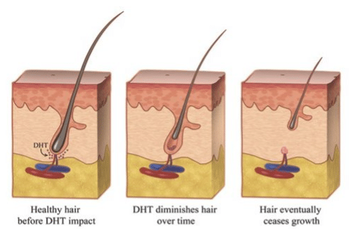 About Hair Loss - Iorio Hair Restoration of New Jersey