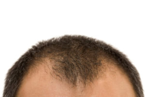 hair transplant surgery permanent