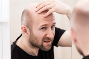 how hair transplant surgery works