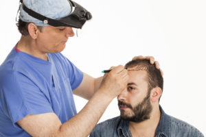 questions for hair transplant surgeon