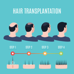 best time for hair restoration