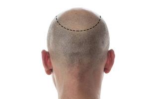 New Hair Transplant