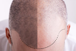 Differences in Hair Loss