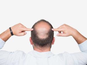 Men Lose Hair