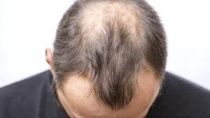 Benefits of Hair Restoration