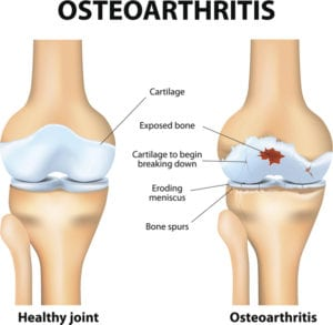 What is Osteoarthritis - Lynx Healthcare