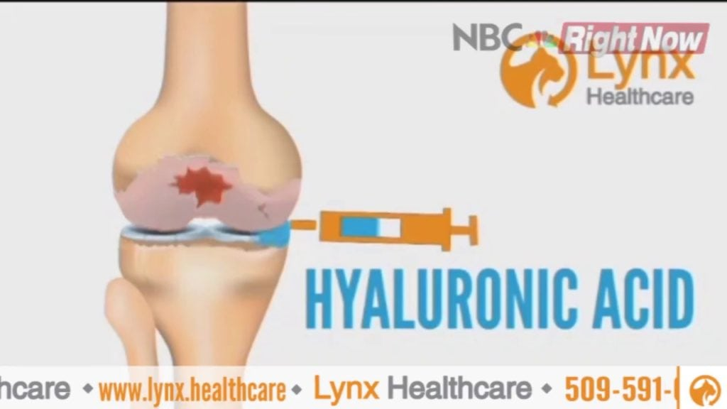 Osteoarthritis Hyaluronic Knee Treatment