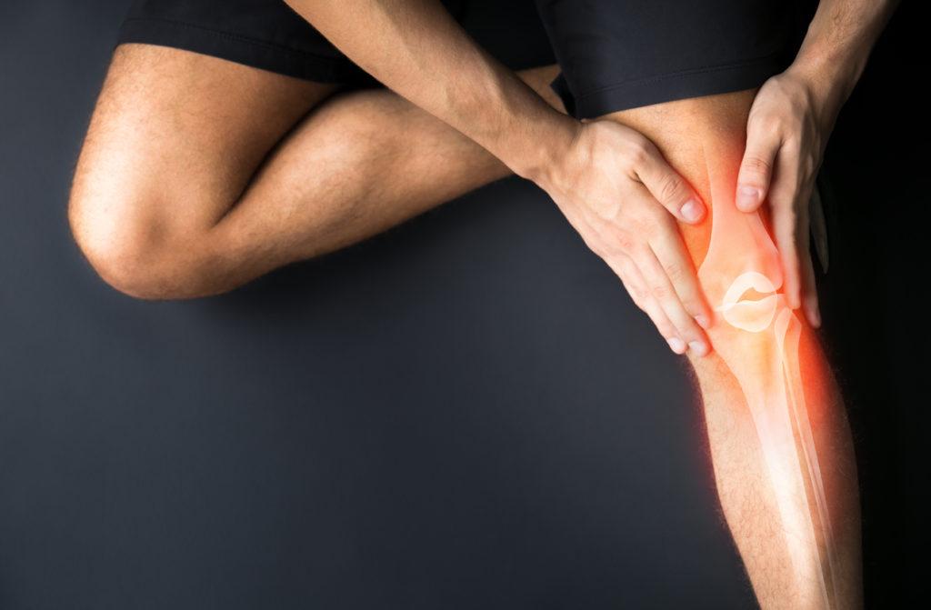 Arthritis Pain?