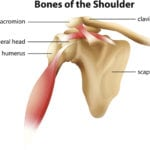 Ground Breaking Surgery: Reverse Shoulder Replacement
