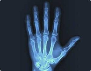 Digital X-Ray - Orthopedic Care - orthopedic doctor - orthopedic surgeons - South Palm Orthopedics - orthopedist Delray Beach, Boca Raton, Boynton Beach, Wellington, Lake Worth, Palm Beach, Palm Beach County