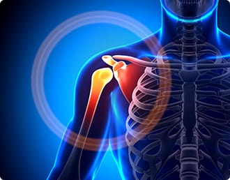 Shoulder Replacement - South Palm Orthopedics - Orthopedic Care - orthopedic doctor - orthopedic surgeons - orthopedist Delray Beach, Boca Raton, Boynton Beach, Wellington, Lake Worth, Palm Beach, Palm Beach County