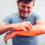 shingles-causes-diagnosis-treatments