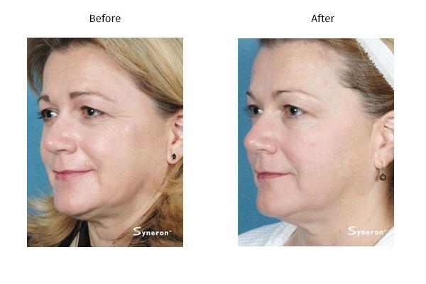 Refirme Skin Tightening