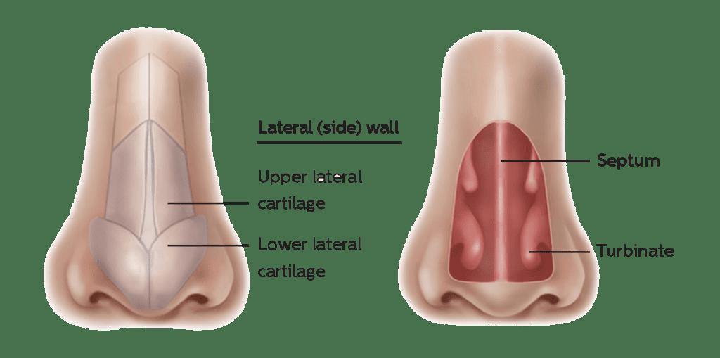 latera implant diagram