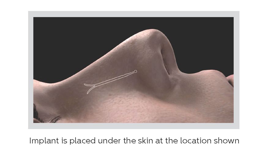 Latera implant is placed under the skin at the location shown